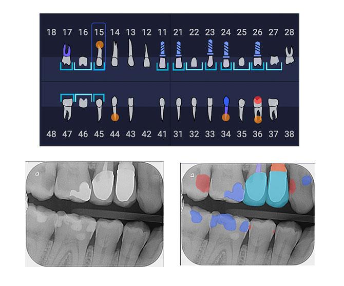 Diese Funktionen bietet Ihnen dentalXrai